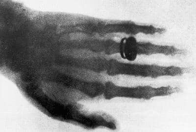 9 Transparently Amazing Facts About X-Rays